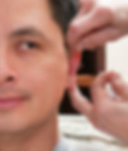 weight control Acupuncture
