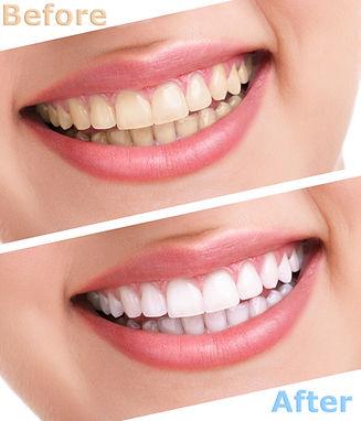 bleaching teeth treatment , close up, is
