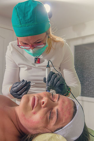 Beautician performs a needle mesotherapy