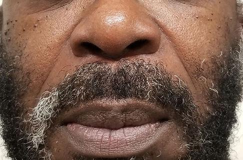 NasalfobialFolds.jpg
