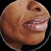 NasalfobialFolds-3.png
