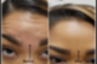 Before and After Forehead.png
