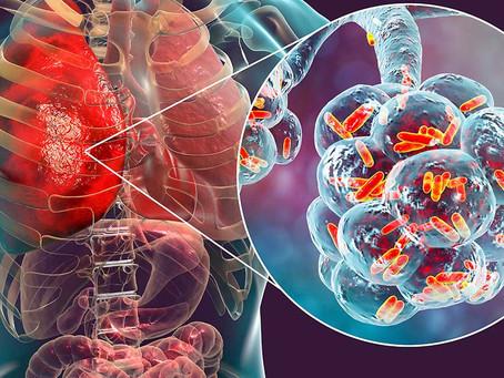 Top 10 Legionella facts