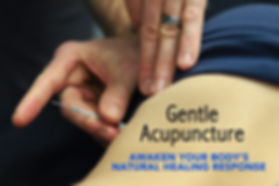 acupuncture-services-bellingham.jpg