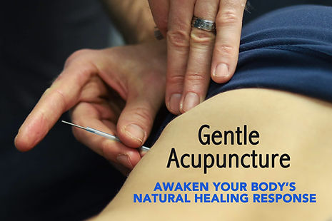 acupuncture-services-bellingham.jpg