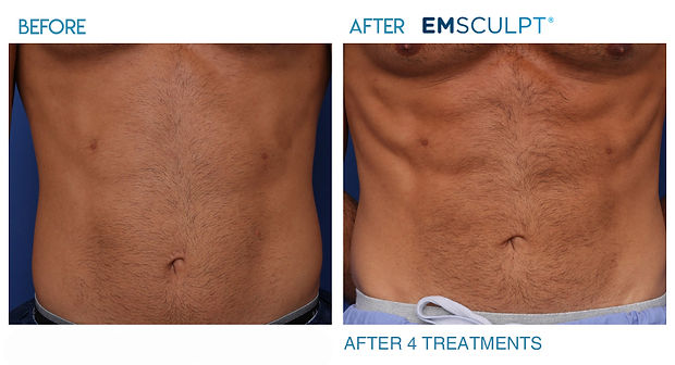 Emsculpt-abs-before-and-after.jpg