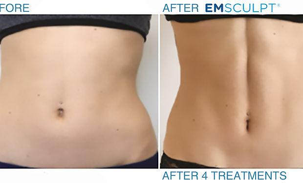 emsulpt-before-after-abdomen-female-1.jp