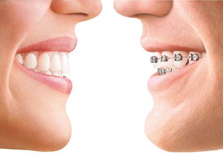 Ortodoncia en adultos, un tratamiento cada vez más frecuente