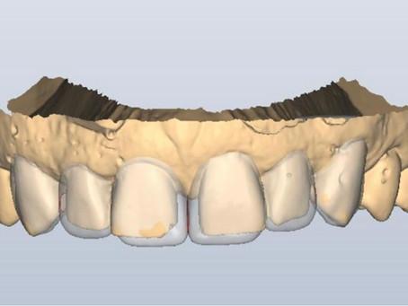 La importancia del encerado diagnóstico en odontología