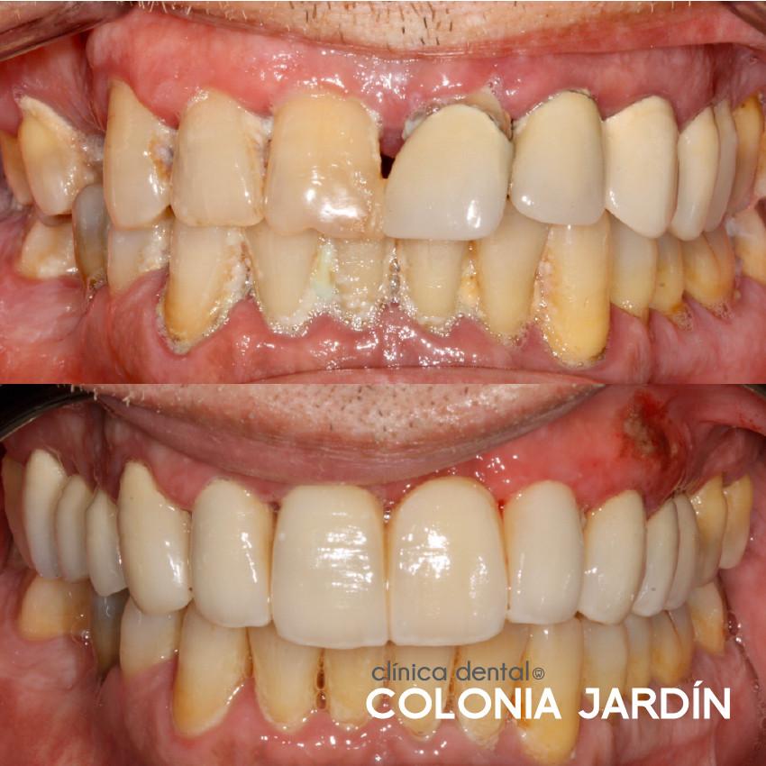 Tratamiento periodontal