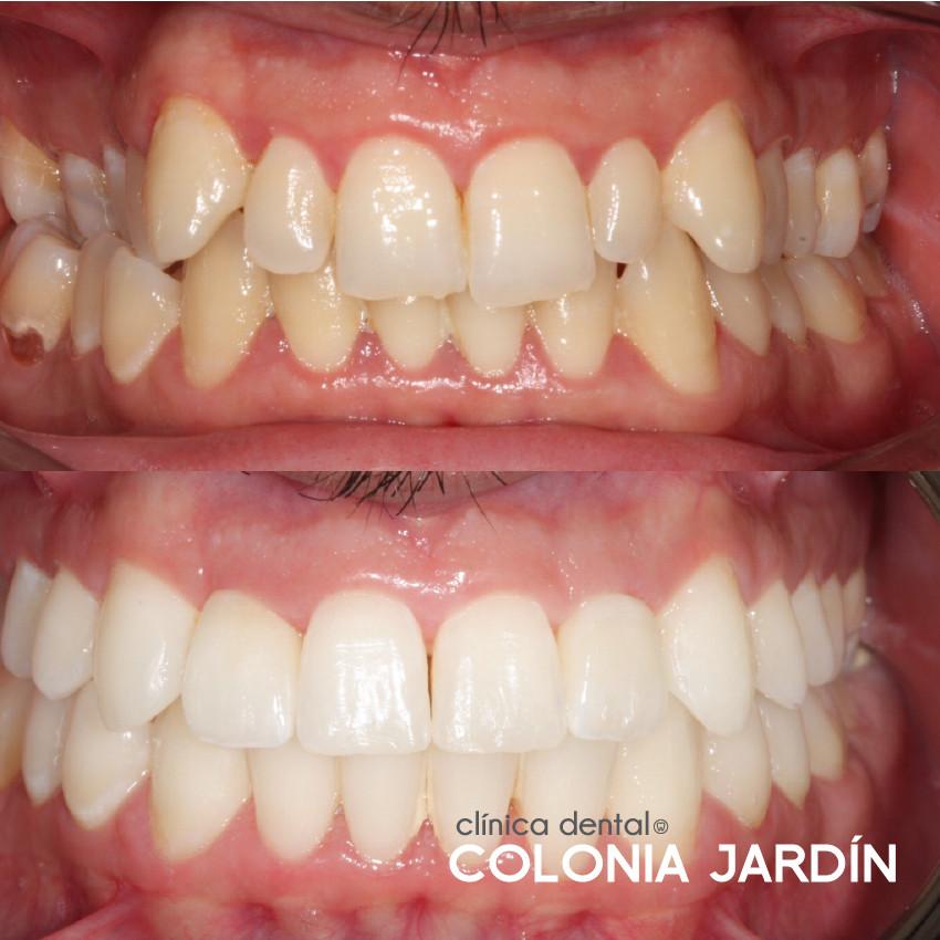 Ortodoncia y estética dental