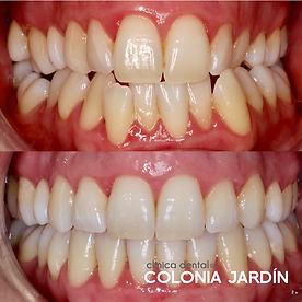 ortodoncia2.jpg