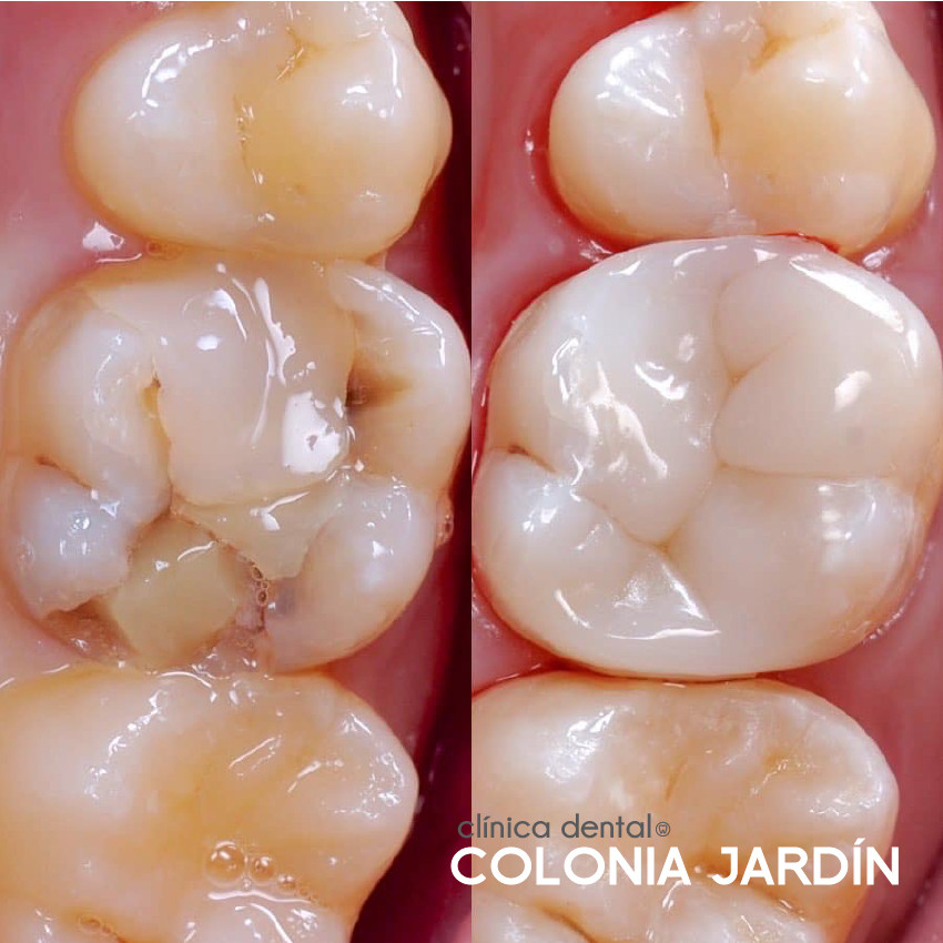 Reconstrucción en molar