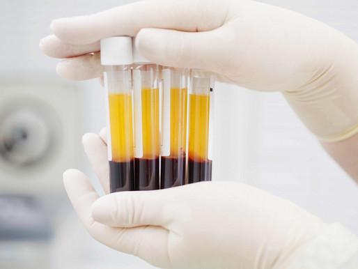 Medicina regenerativa: plasma rico en plaquetas