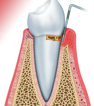 Periodontitis o piorrea