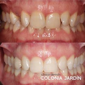 ortodoncia-+implantes.jpg