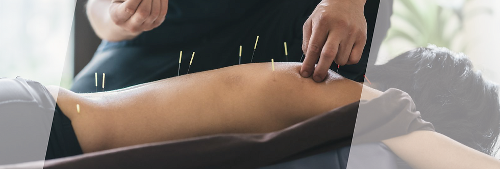 Treatment modalities_Acupuncture.png