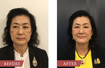 Before After Ulthera.jpg