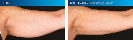 Upper arm_Female_Before_After_12wks_Right.jpg