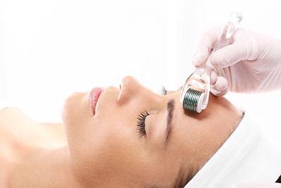 dermaroller on woman's forehead