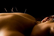 back with acupuncture needles