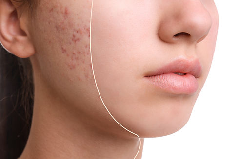 Teenage girl before and after acne treat