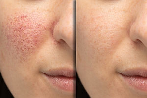 Before and after laser treatment for ros
