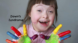 down syndrome kids