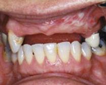 implant03b.jpg