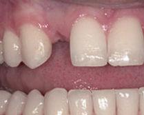 implant01b.jpg