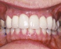 implant04b.jpg