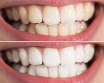 teethwhitening-300x200.jpg