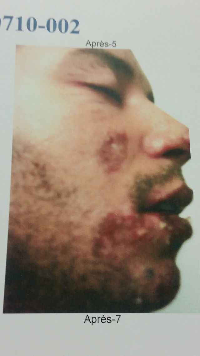 Ahmed Yousfi apres incident.jpg