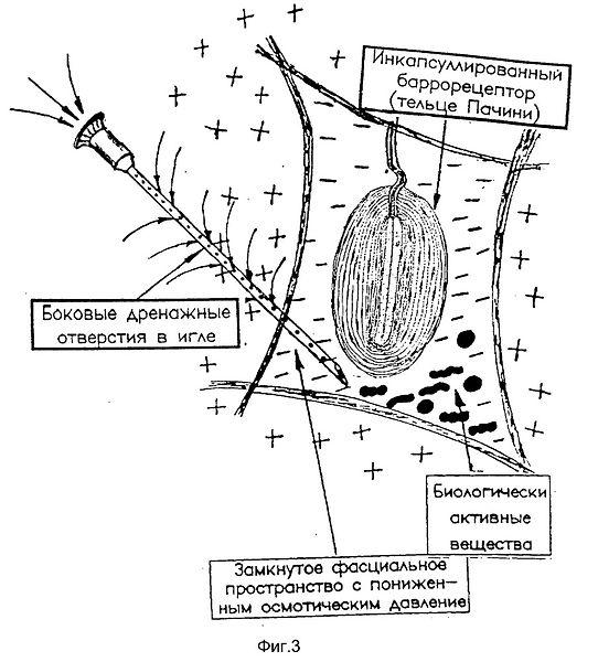 Лечение сухой иглой триггерног узла