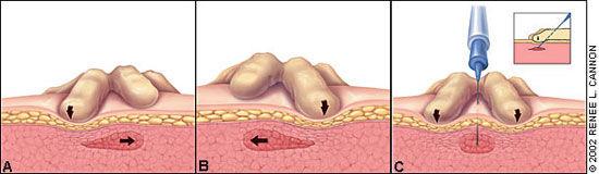 Метод лечение триггерных узлов сухой иглой
