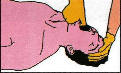 Растяжение жевательных мышц