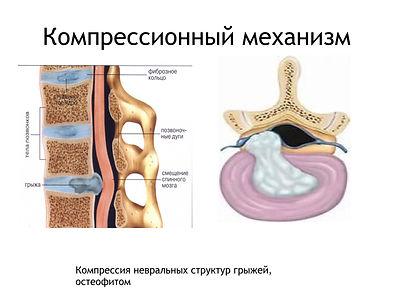 Компрессия нерва грыжей диска