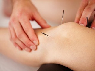 Knee Pain and Acupuncture