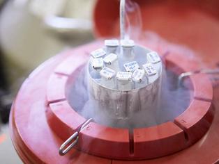 Congelamento de óvulos é opção para retardar a gravidez