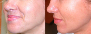 Dermaroller Skin Tightening