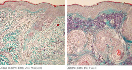 collagen biopsy