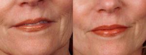 Dermaroller Wrinkles