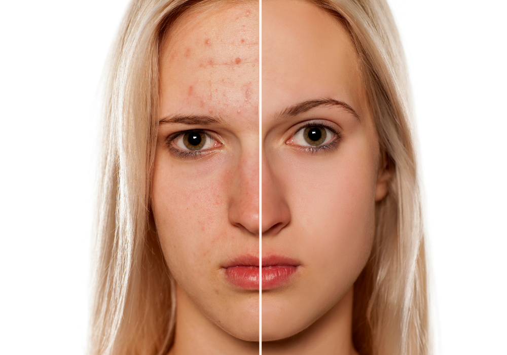 A blond woman's face is divided in half by a thin white line. The left side of her face shows acne and redness of the skin. The right side of her face shows smooth skin and clear complexion.