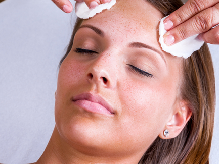 All About Chemical Skin Peels