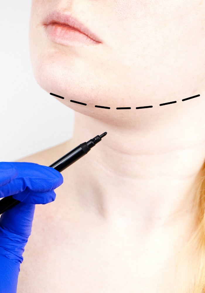 A medical professional wearing blue latex gloves uses a black marker to draw a series of lines around a woman's jawline.