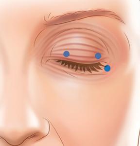 Blepharospasm - 4 Ways to Treat