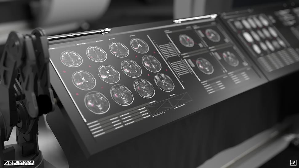 MRI_2.png
