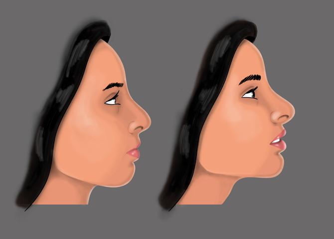 Ilustrações Médicas - Dr. Tulio Souza