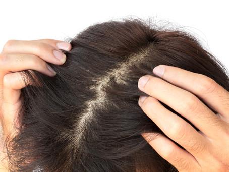 是什麼原因導致頭皮屑?