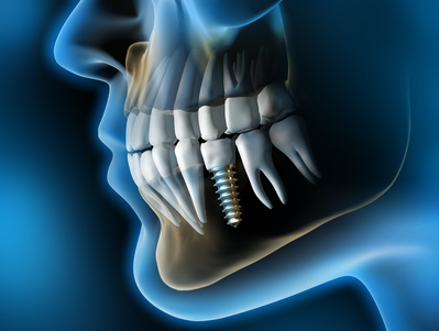 implantes dentales 2 abedent clinica dental.jpg